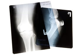 Joint Replacement Academy | Roseville CA | Folsom CA