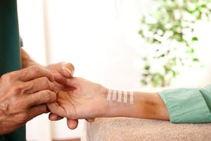 Elite Hand & Upper Extremity Therapy