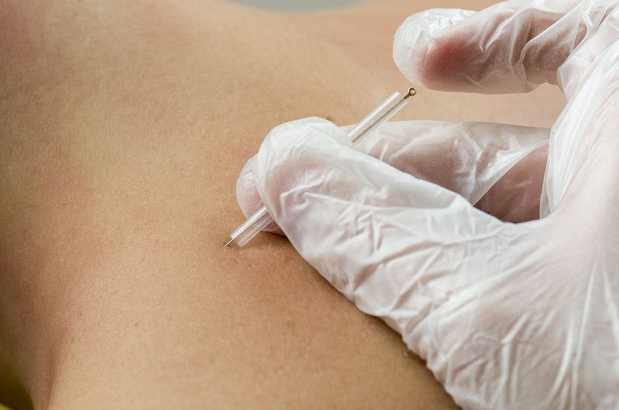 dry needling tdn action therapy inc rh actiontherapyinc com