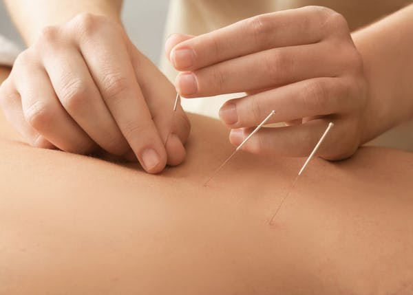Acupuncture Cranford NJ