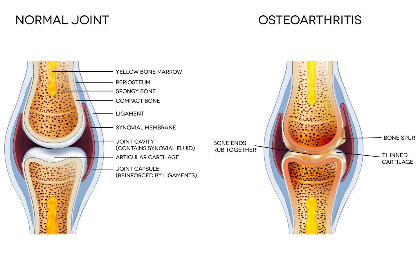 Subchondral Knee Synovial Joint Diagram Modern Design Of Wiring What Is Osteoarthritis Desoto Physical Therapy Rh Desotopt Com And Label