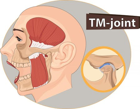 Headaches Tmj Rsm And Scor Physical Therapy