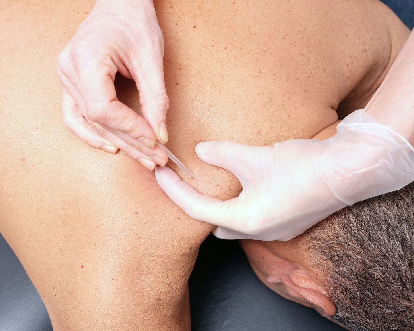 Dry Needling - Total Body Therapy & Wellness - Lillington, NC